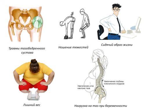 Сакроилеит: симптомы и лечение заболевания
