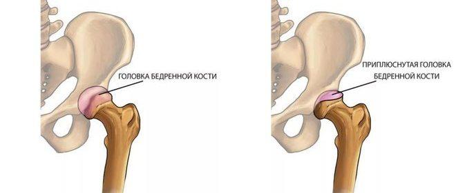 Болезнь Пертеса (Легга-Кальве-Пертеса) у детей, взрослых: лечение, симптомы