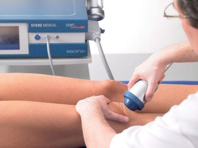 физиотерапия при инфрапатеральном бурсите