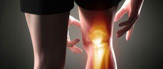 Инфрапателлярный бурсит колена