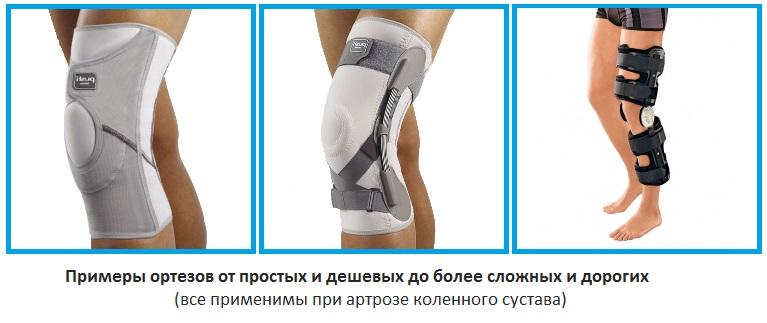 Изображение - Ортезы для коленного сустава при артрозе ortez-kolennyj-artroz-kolennogo-sustava
