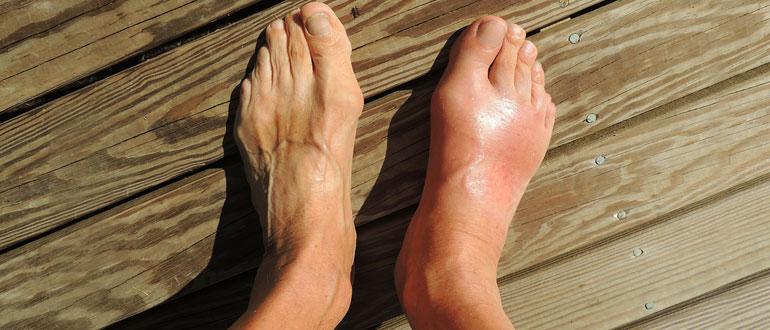 Симптомы артроза стопы