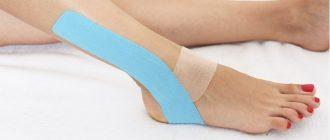 Как лечить растяжение связок голеностопа