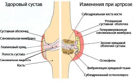 Гимнастика при артрозе коленного сустава симптомы