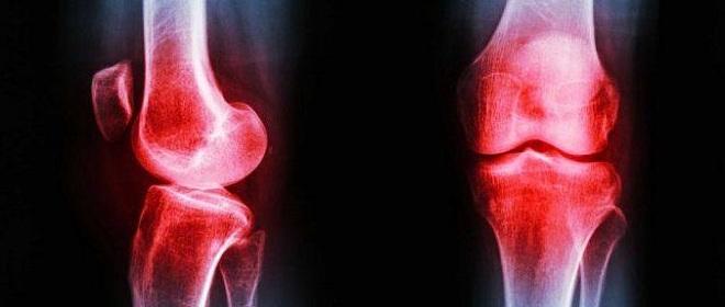 Реактивный артрит клинические рекомендации