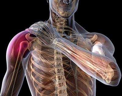 Синовит плечевого сустава хронический
