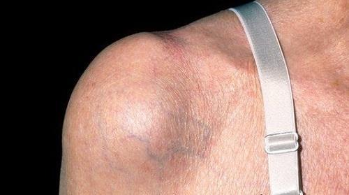 субакромиальный бурсит плечевого сустава симптомы