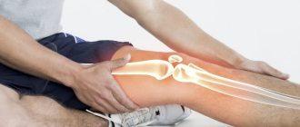 Воспаление сухожилий коленного сустава