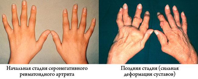 Серонегативный рематоидный артрит