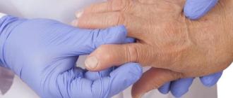 Стандарт лечения ревматоидного артрита