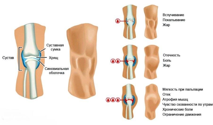 Степени гемартроза колена