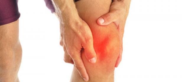 Хондромаляция коленного сустава