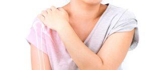 Повреждение банкарта плечевого сустава