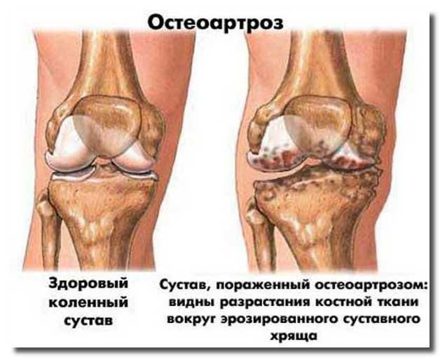 остеоартроз_osteoartroz