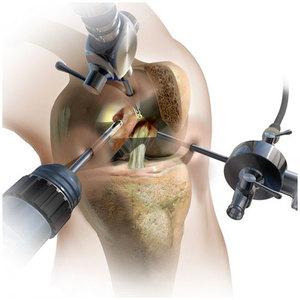 Как производится проникновение в колено при операции артроскопии