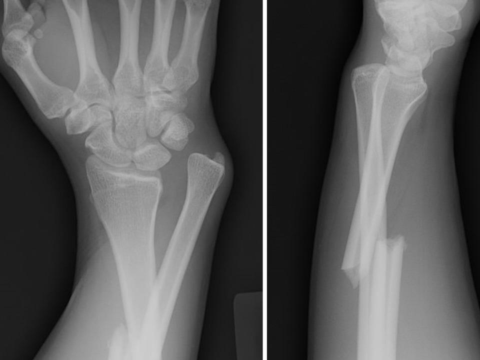При серьезных травмах костей