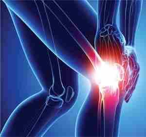 Лечение артроза коленного сустава прибором Алмаг