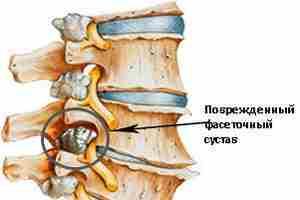 Деформация фасеточного сустава