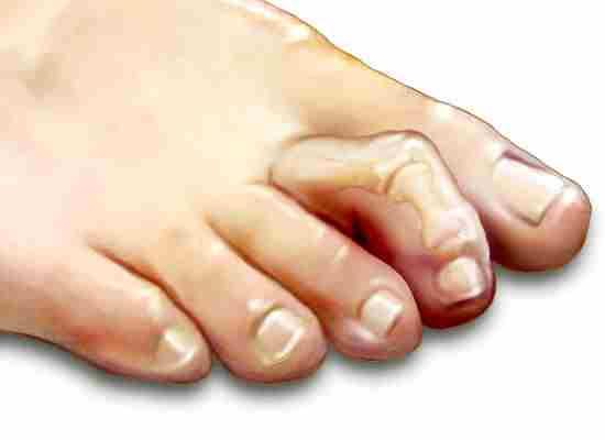 Молоткообразный палец
