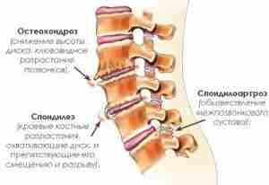 Причины спондилоартроза поясничного отдела позвоночника