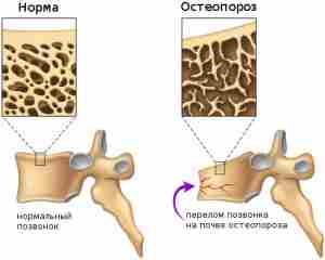 Risunok-5.-Perelom-kosti-porazhennoy-osteoporozom