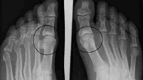 Артроз стопы: симптомы и лечение, фото артроза