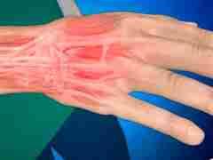 Боль в сухожилиях рук: причины, лечение и профилактика