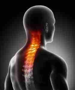 КТ шейного отдела позвоночника назначают при травмах позвонков, опухолях различного генеза, прорастание опухолей злокачественного характера в позвонки и т.д.
