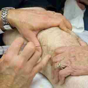 Как лечить гемартроз коленного сустава