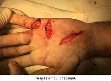 Лечение Контрактуры Дюпюитрена в Хабаровске