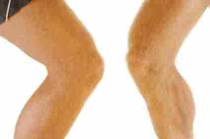 Болят колени при приседании - что делать?