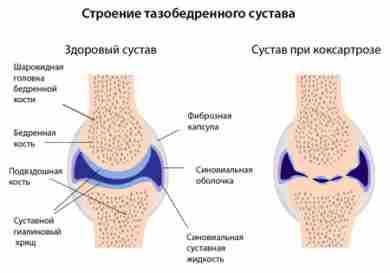 коксартроз