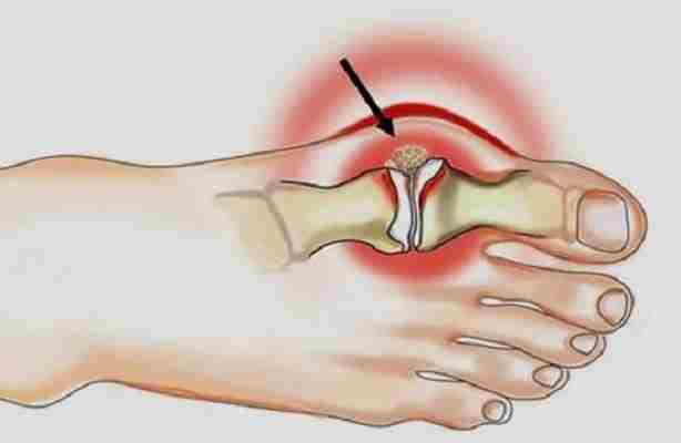 Как избавиться от косточки на ноге у большого пальца?