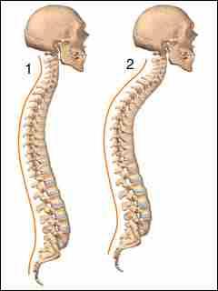 1. Здоровая спина, 2. Кифоз позвоночника