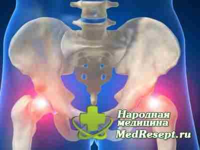 Причины дисплазии тазобедренных суставов