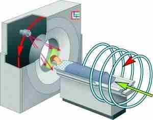 Спиральная компьютерная томография — это усовершенствованный метод, при котором производится съемка срезов одновременно по всей исследуемой области. При этом излучающая трубка вращается вокруг тела пациента, а стол, на котором он лежит, движется поступательно