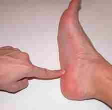 Внешний вид пяточной шпоры, как выглядит на ноге у пациента