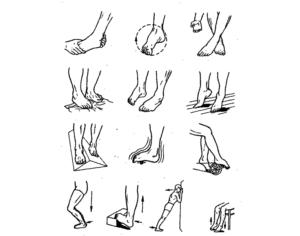 Упражнения ЛФК при травме голеностопного сустава, ЛФК при переломе голеностопа