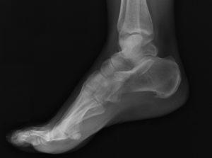 Рентген стопы необходим для диагностики перелома