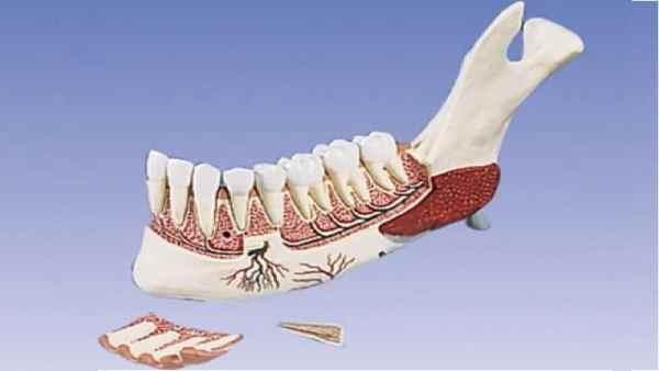 Лечение и симптомы остеомиелита верхней челюсти