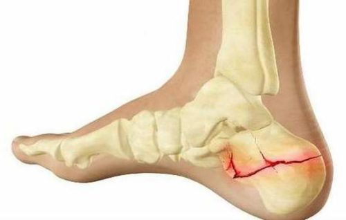 Пяточная кость перелом