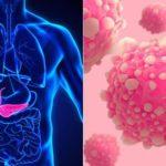 Рак и психосоматика: причины возникновения заболевания