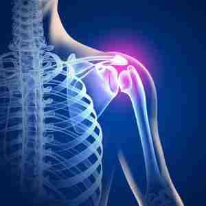 Болезни суставов практически невозможно вылечить