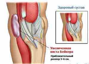 Киста Бейкера (Беккера) коленного сустава. Лечение.